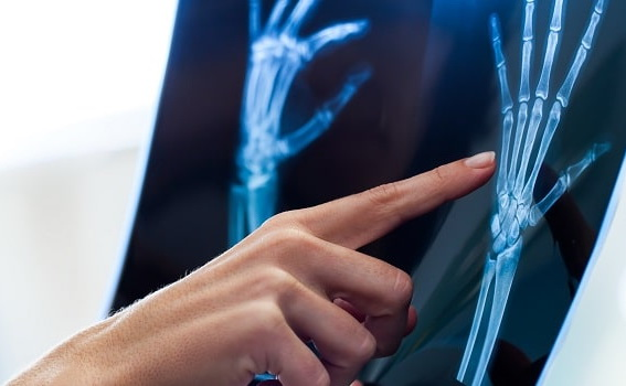 Hand & Wrist Pain Treatment